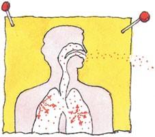 radon-lungs